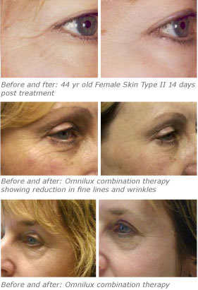 Omnilux facial treatments