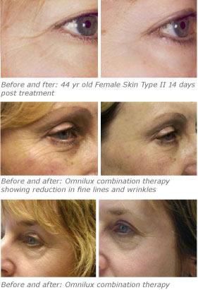 Omnilux facial treatments