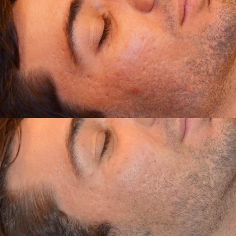 skin needling treatments perth