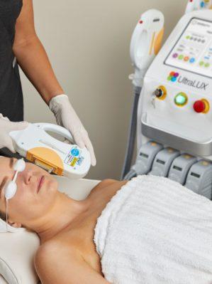 IPL Skin Rejuvenation In-Use 18